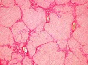 fibrose