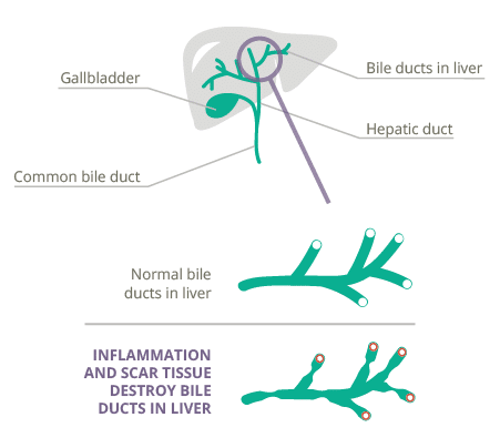 Primary biliary cholangitis (PBC) | Genfit